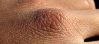 Почему шелушится кожа и как с этим справиться?